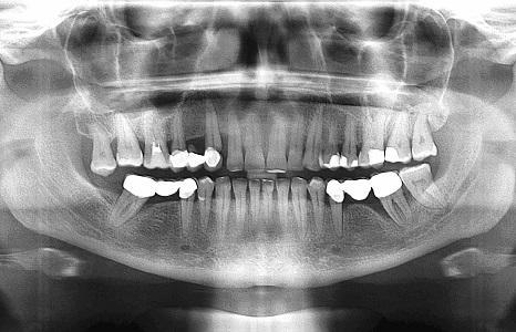 Рентген зубов: немного о процедуре