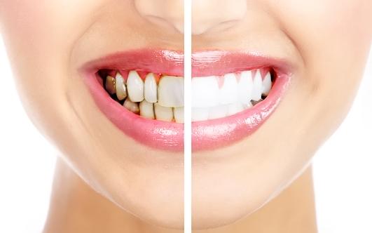 Как удалить налет от сигарет с зубов?