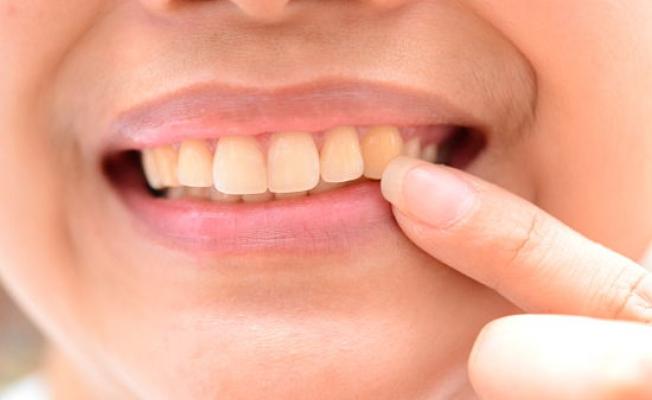 Что такое дентин зуба