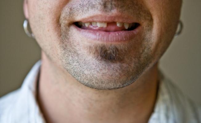 Почему разрушаются зубы