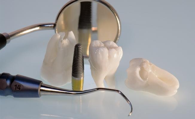 Сломался зуб: что делать