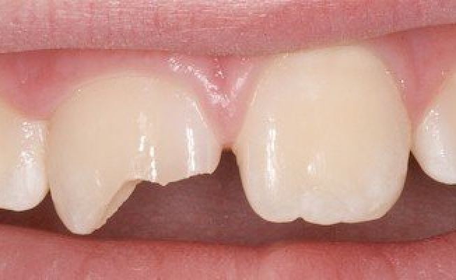 Перелом зуба: что делать