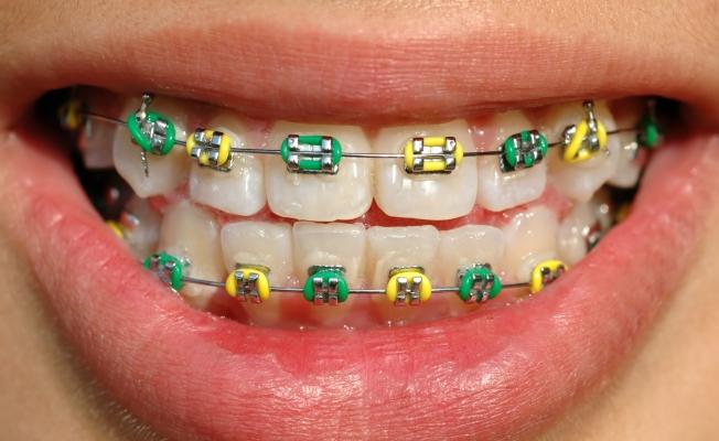 Выравнивание зубов: методы
