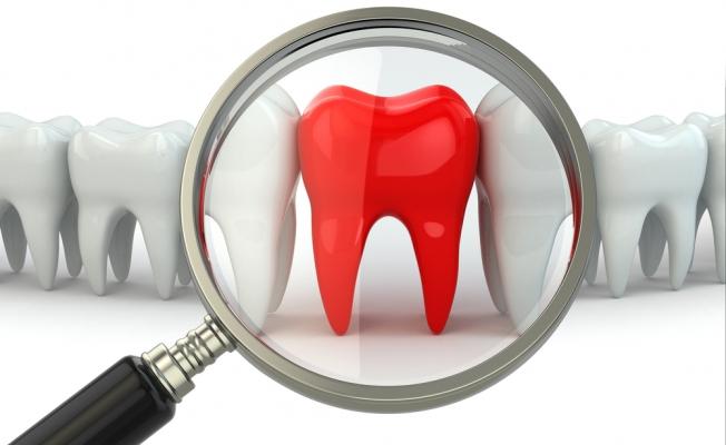 Потеря зубов: восемь причин