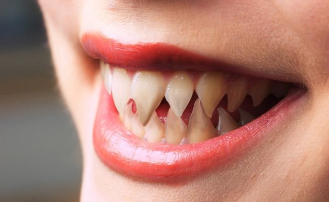 Острые зубы: о чем это говорит