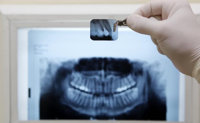 Гранулема зуба и ее лечение