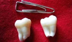 Специфика корней зуба мудрости