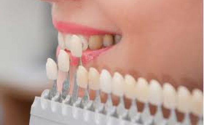 Как выпрямить зубы без брекетов