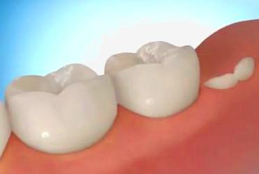 Пересадка зубов мудрости как способ заместить дефект зубного ряда