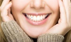 Украшения в зубах смогут лечить заболевания полости рта