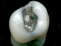 Зубные пломбы увеличивают концентрацию ртути в организме