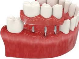 Стоит ли имплантировать зубы/ Плюсы и минусы имплантации