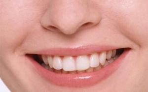 Сколько зубов стоит ребенок маме