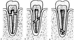 По содержанию изотопов свинца в зубной эмали можно определить, из какой местности человек родом