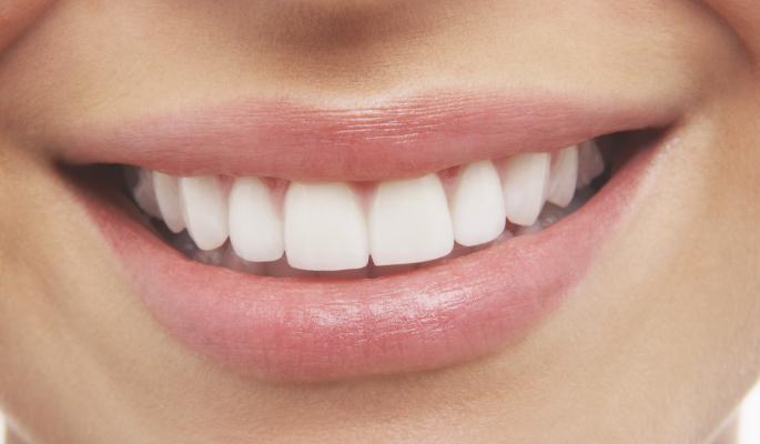 Зачем отбеливать зубы