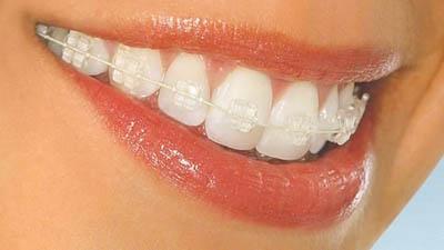 Прикус исправляет ортодонтия