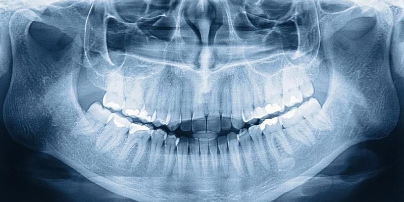 Важность рентгена в стоматологии