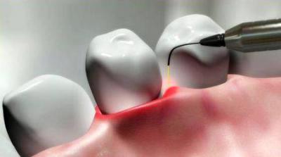 Лазерное воздействие в стоматологии