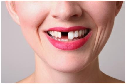 Кариес зубов