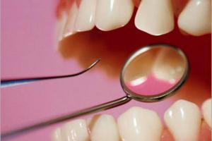 Ученые назвали еще один повод сходить к стоматологу