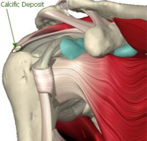 Лечение сухожилий плечевого сустава