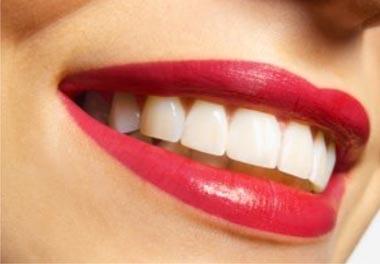 Ровные зубы стоят неудобств