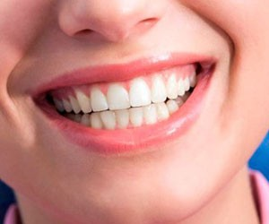 Врачи назвали опасным отбеливание зубов