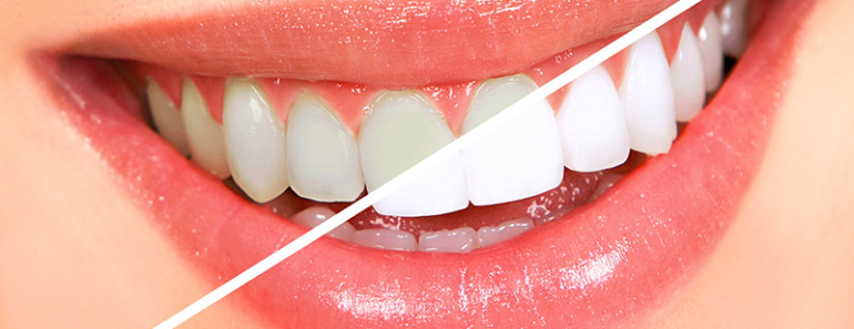 Отбеливание зубов и профессиональная гигиена