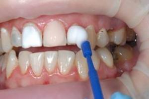 Реминерализирующая терапия – современный метод лечения зубов