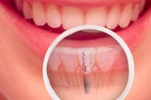 Электричество приходит на службу стоматологам-имплантологам