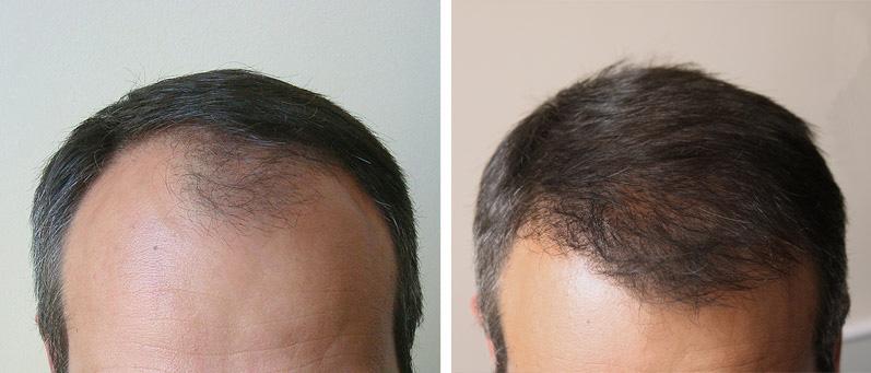 Пересадка волос как популярная во всем мире процедура