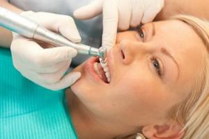 Что такое зубной камень и зачем его удалять
