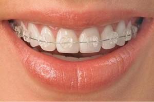 Самые дорогие косметические процедуры в стоматологии