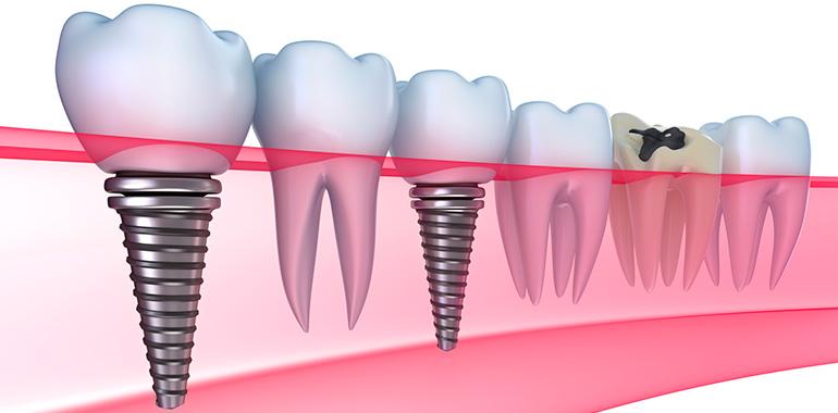 Экспресс-имплантация зубов с моментальной нагрузкой
