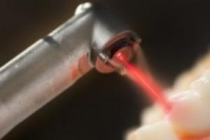 Лечение и диагностика кариеса лазерным методом