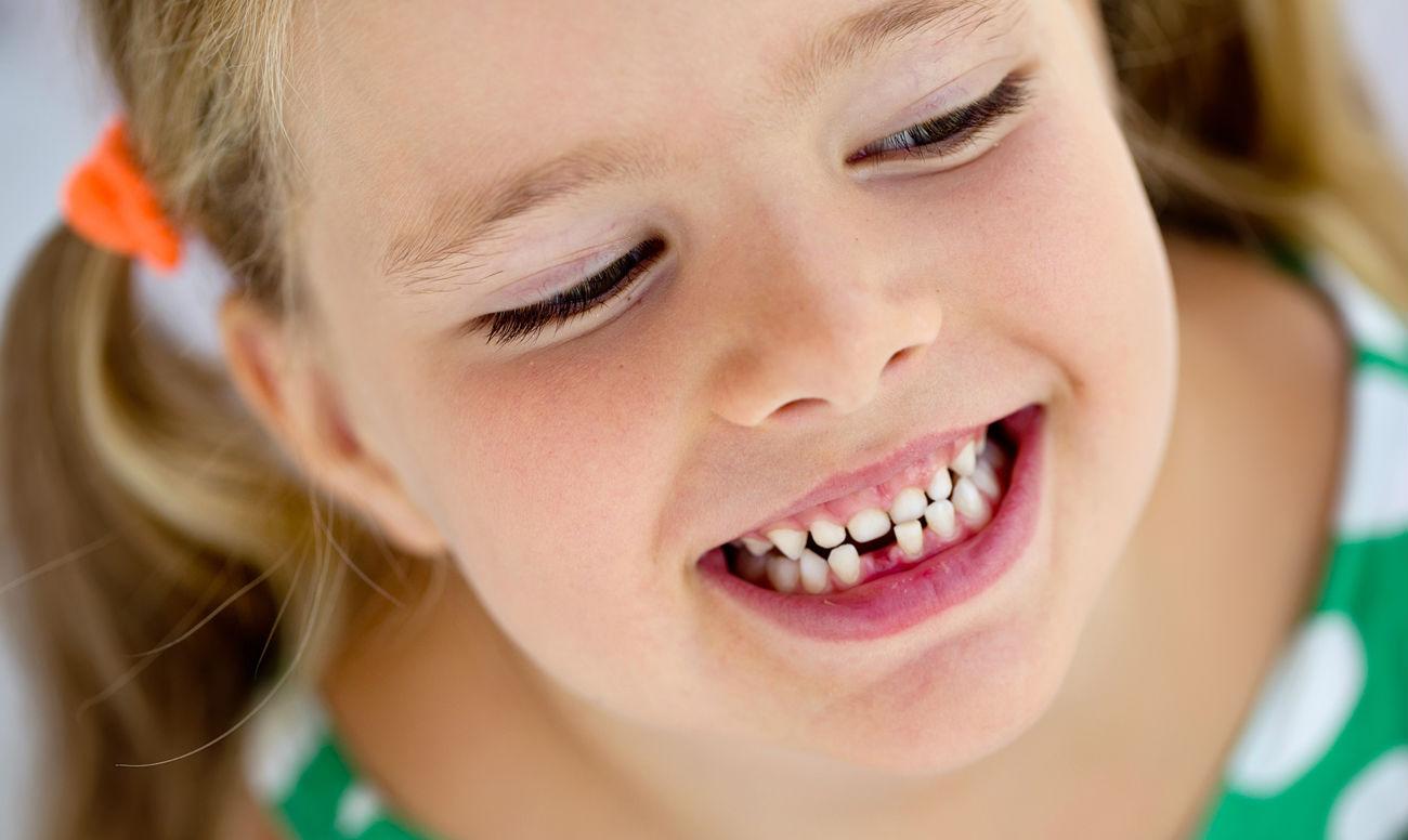 У ребенка кривой зуб – что делать?