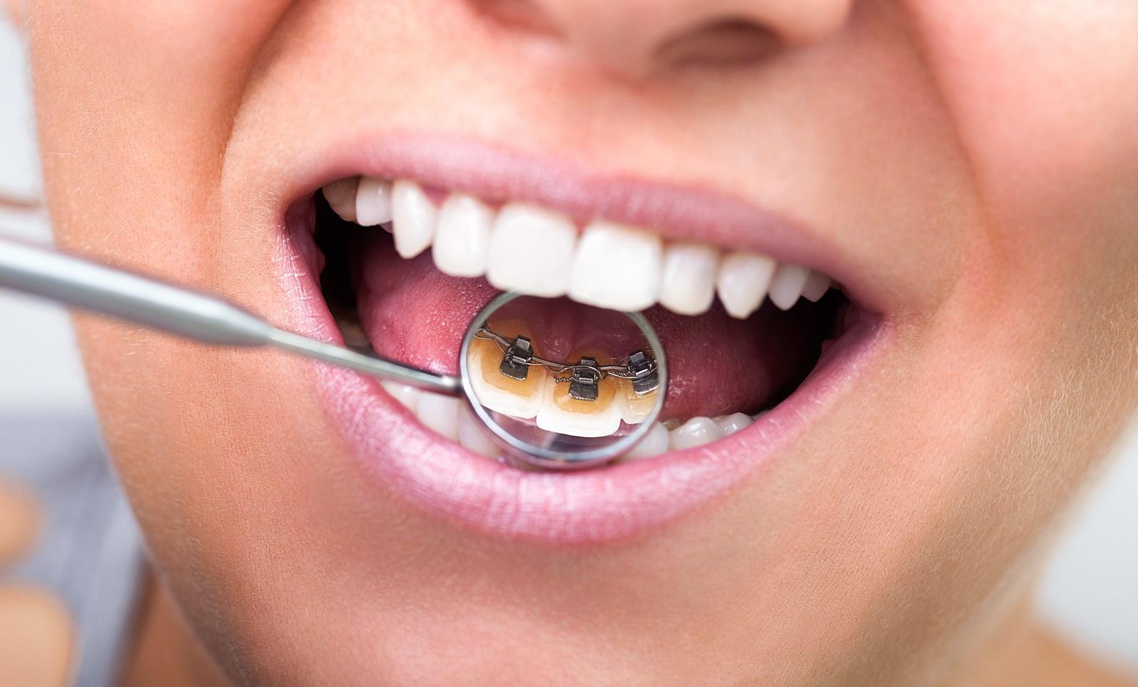 Чудеса ортодонтологического лечения или лингвальные брекеты Social six