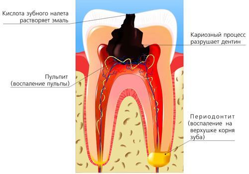 Пульпит зуба и его лечение