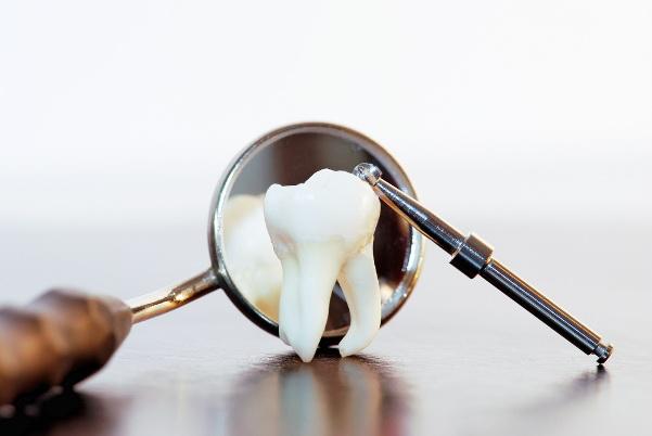 Удаление зубов — ответственная процедура