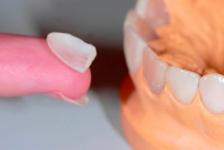 Могут ли виниры заменить ортодонтическое лечение?
