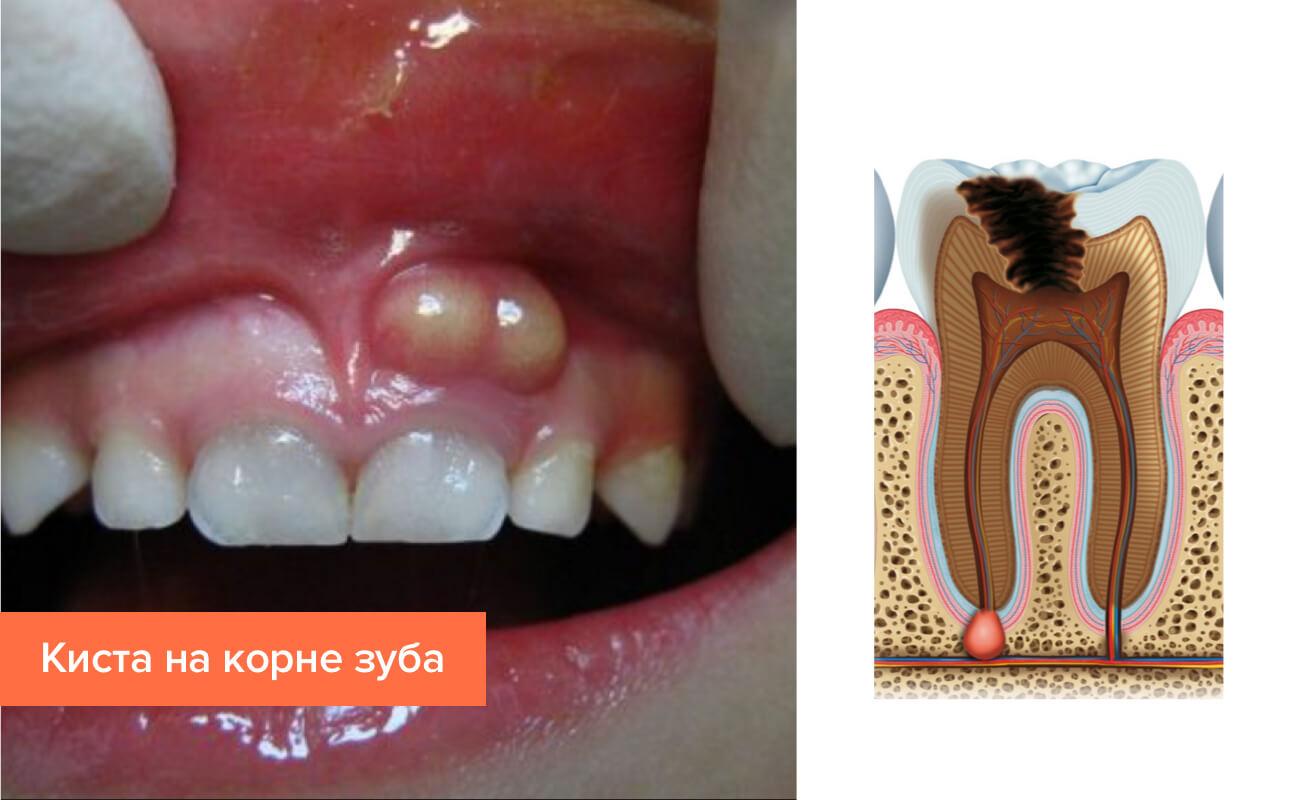 Лечение кисты зуба лазером