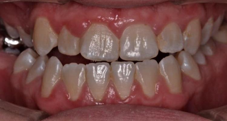 Важность коммуникации между ортодонтом и хирургом при лечении пациентов с аномалиями окклюзии скелетной этиологии