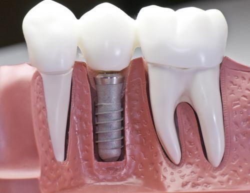 Стоит ли бояться имплантации зубов? Мнение экспертов
