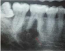 Клинический случай: гигантоклеточная опухоль нижней челюсти.