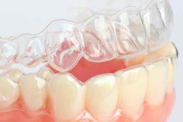 В США растет тенденция к выравниванию зубного ряда без обращения к ортодонту