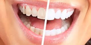Главные причины пожелтения зубов