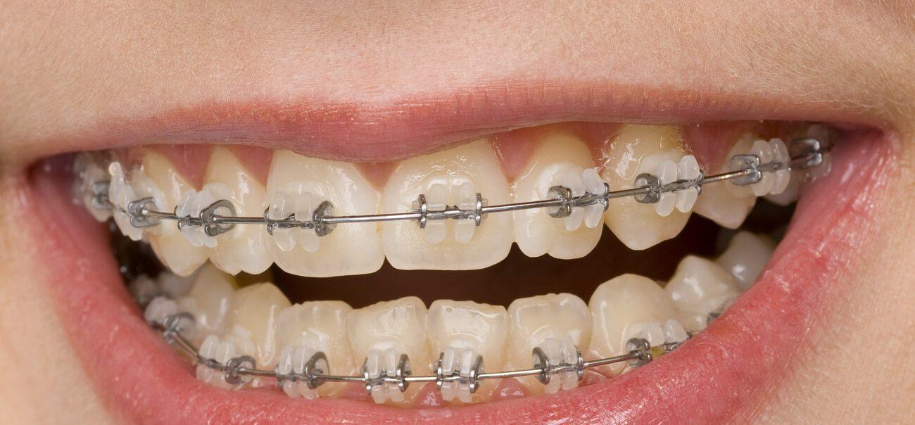 Брекеты на зубы – ставить или нет?