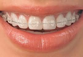 Cапфировые брекеты для бесценной улыбки