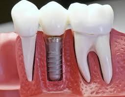 Перед протезированием зубов укрепите иммунитет!