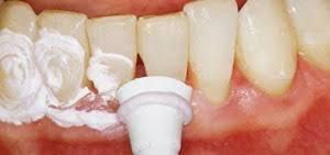 Новый способ восстановления зубной эмали